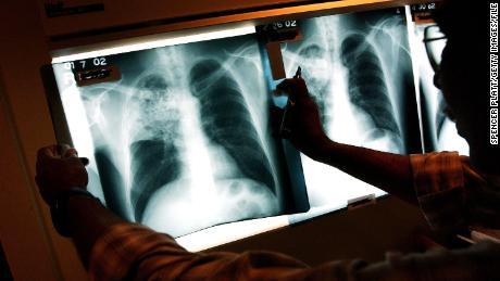 Datos rápidos de la tuberculosis