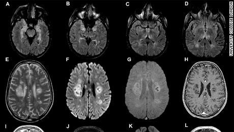 Escaneos cerebrales del estudio del University College de Londres, publicado el 8 de julio.