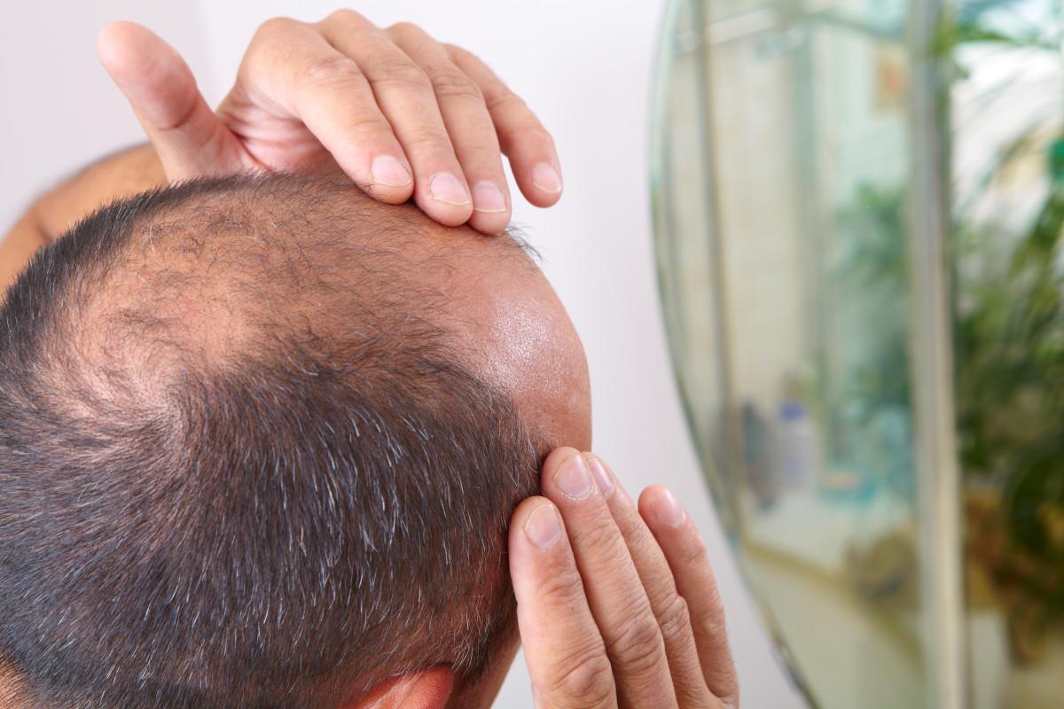 Un estudio halla que la pérdida de cabello puede ser un síntoma de coronavirus